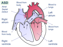 Diagram of the four chambers of the heart. There is a gap in the wall between the upper-left and upper-right chambers