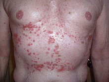 Adult chest and abdomen with many red skin lesions