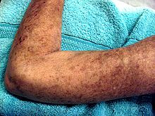 Multiple, brownish colored patches of skin on an adult arm