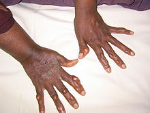 Multiple nodules on the hands of an adult