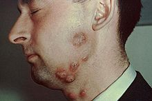 Multiple circular, red, scaling lesions on a male cheek